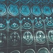 Prevalence of Stroke in Younger Adults Steadily Rising, According to 2017 Study